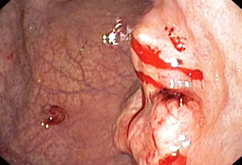 endoscopic view of adenocarcinoma