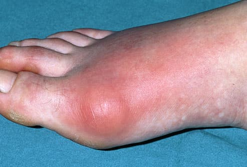 Inflamed toe joint in patient with gout