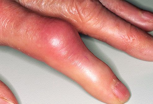 red, swollen index finger caused by acute gout