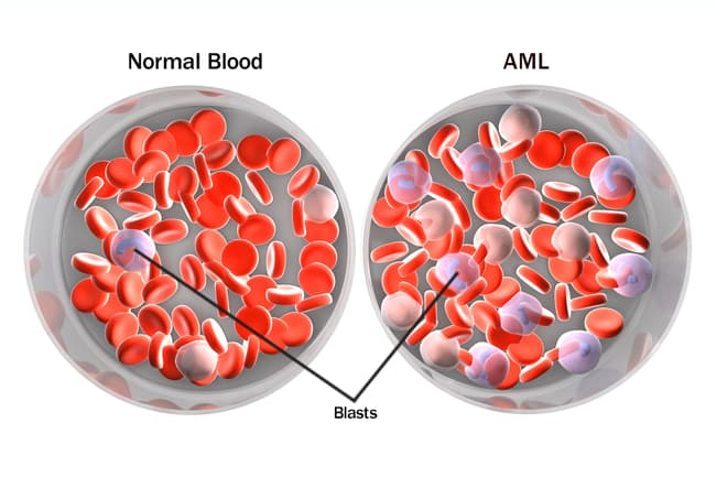 normal blood vs aml
