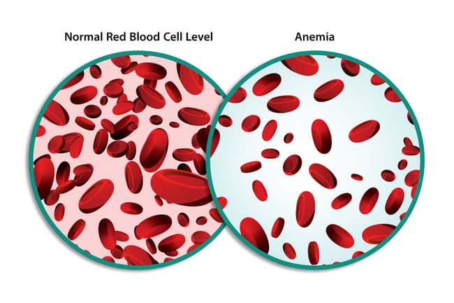 photo of normal blood vs anemia