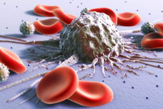 photo of blood cancer concept