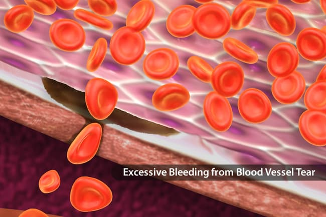 photo of von willebrand disease