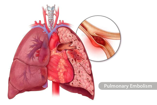 photo of pulmonary embolism