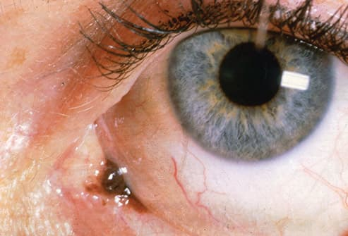 conjunctival melanoma close up