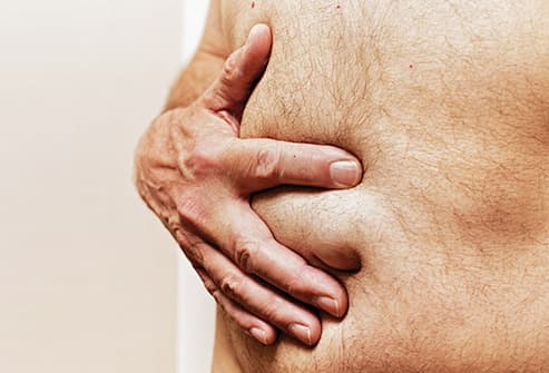 man holding hernia close up