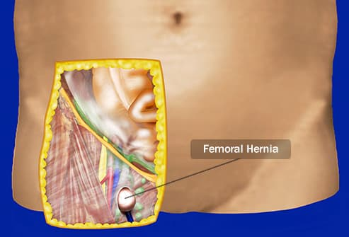 femoral hernia illustration