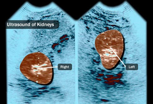 Visual Guide To Kidney Cancer