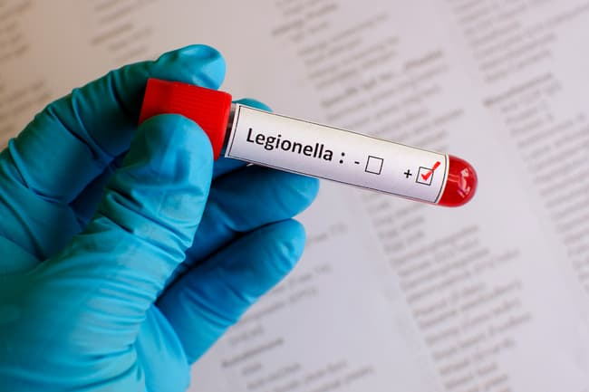 photo of legionella bacteria