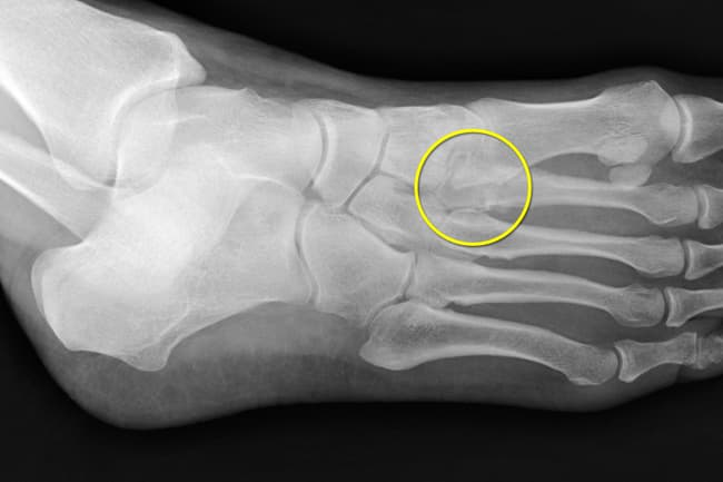 stress fracture in foot