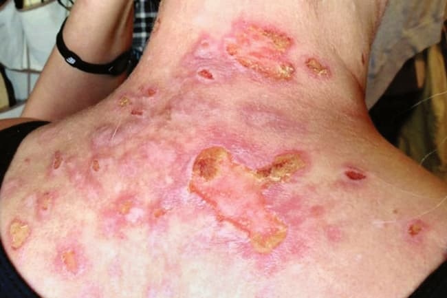 Pictures Of 15 Uncommon Skin Conditions