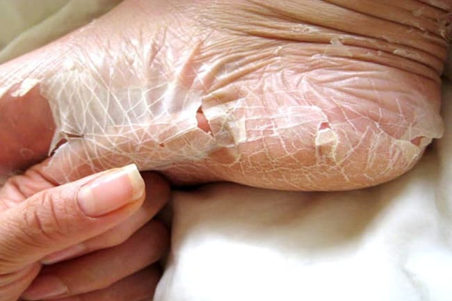 cutaneous peeling skin syndrome