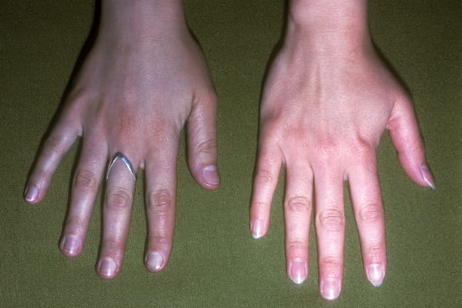 argyria hand comparison