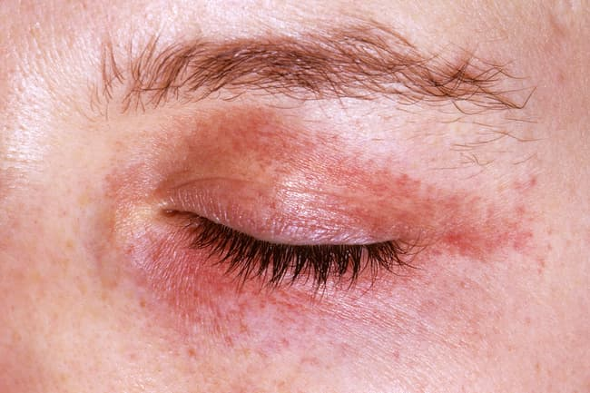 15 Uncommon Skin Conditions With Pictures