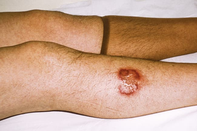 necrobiosis lipoidica sore_on_leg
