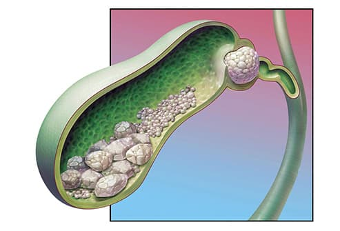 What Does Your Gallbladder Do And What Can Go Wrong