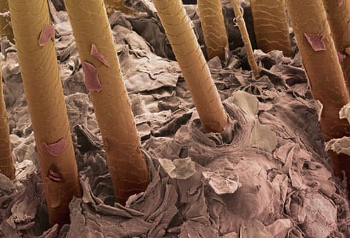 Scanning electron micrograph of hairs emerging fro