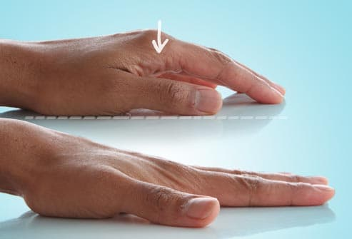 finger stretch exercise
