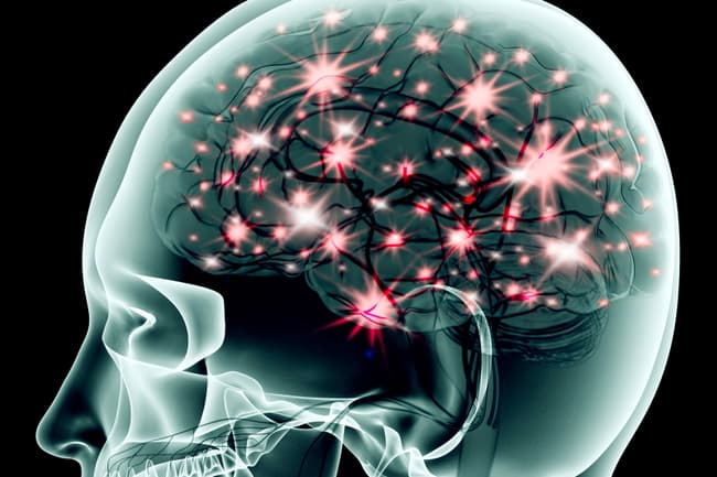 photo of electrical activity in brain