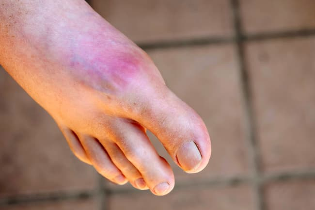 photo of gout on foot