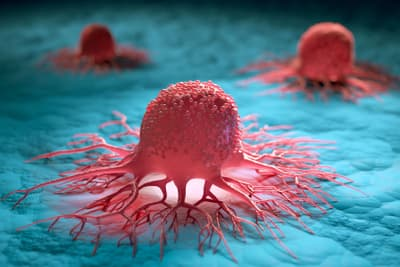 photo of cancer cells