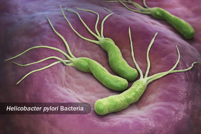 photo of helicobacter pylori bacteria