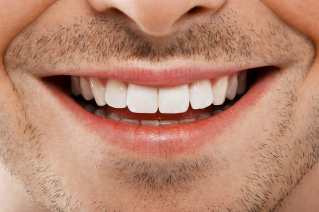 photo of white teeth