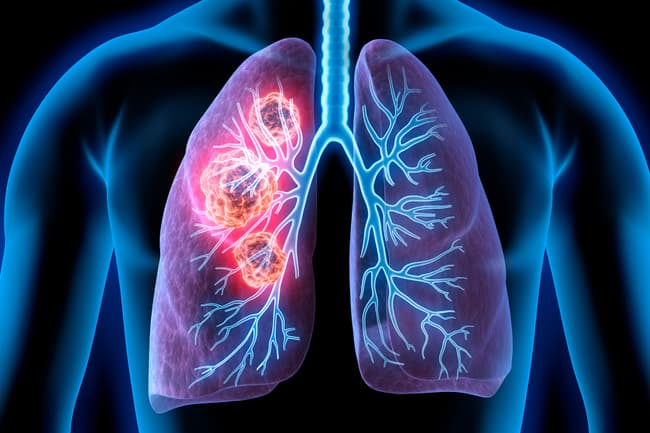 photo of lung cancer illustration