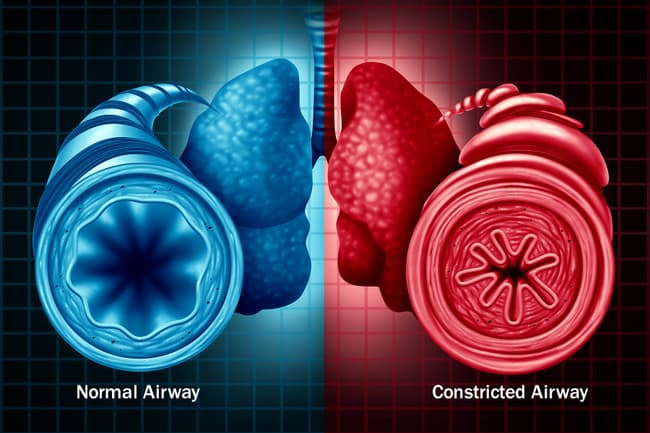 photo of normal vs constricted airways