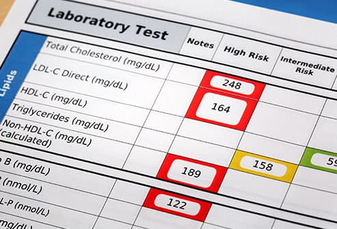 cholesterol lab test close up