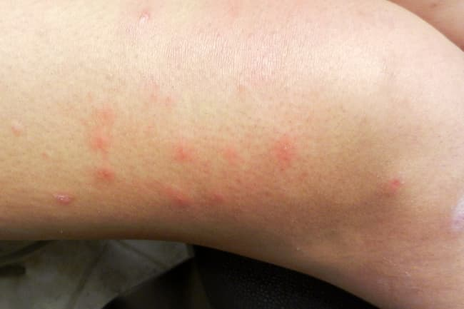 insect bites on leg