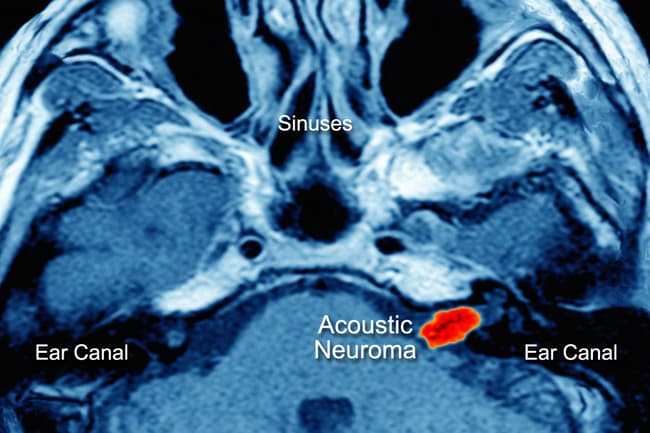 photo of an acoustic neuroma