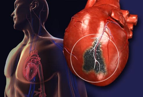 heart attack pictures: anatomy diagrams, symptoms, and what to do, Human Body