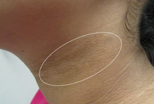 acanthosis nigricans on womans neck
