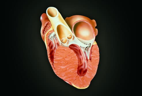 an analysis of cardiomyopathy a serious disease in which the heart muscle becomes inflamed and doesn Heart disease is a group of conditions that cause wear and tear on the heart muscle  copd occurs when the dog's airway becomes inflamed.