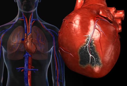 an introduction to the issue of congestive heart failure Hf is caused by a loss of cardiac pump function, which can be due to a structural abnormality of the heart muscle (eg myocardial infarction) or a change in the heart function (and often structure) in response to an abnormal load (eg aortic valve stenosis.