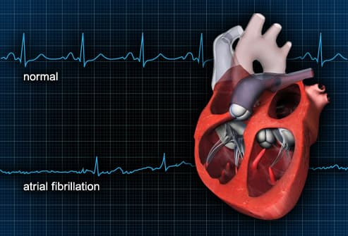 Normal EKG contrasted with atrial fibrillation