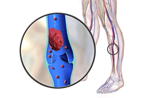 blood clot illustration