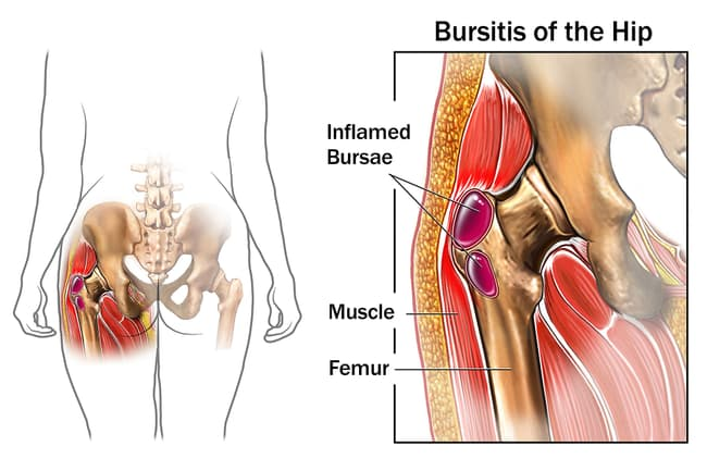 bursitis of the hip illustration