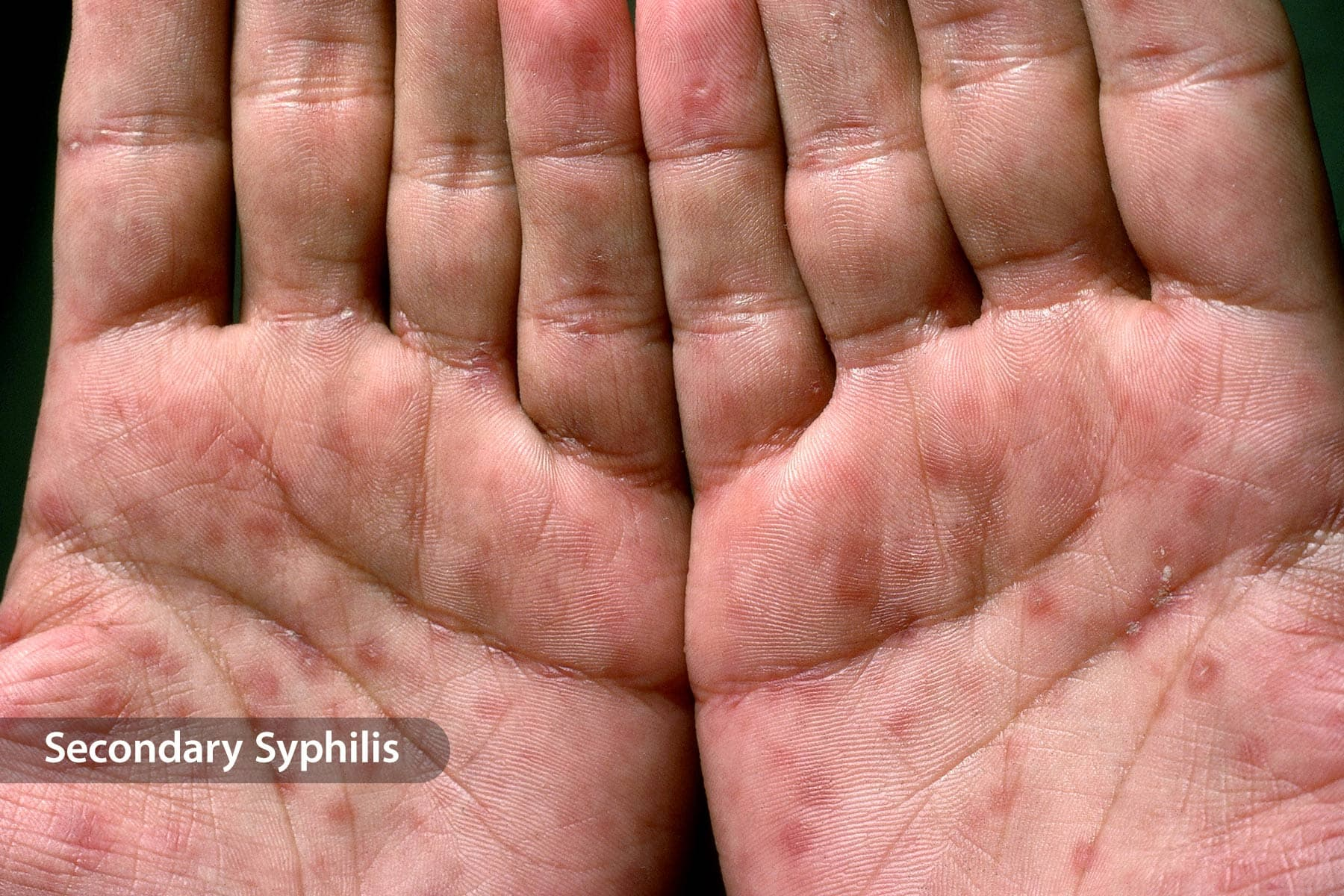 Hiv and lung cancer - primariacetateni.ro, Warts on hands sign of hiv