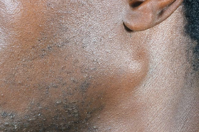 HIV: Symptoms That Affect Your Whole Body