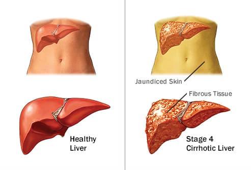 healthy vs cirrhotic liver