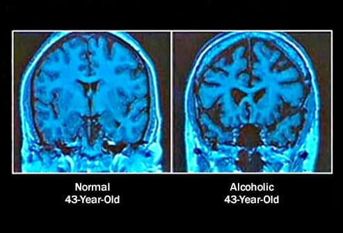 Pictures of How Alcohol Affects Your Body
