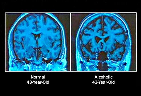 normal vs alcoholic brain