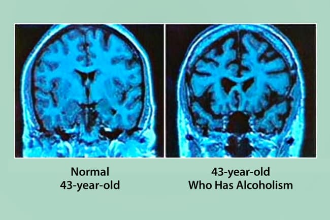 normal vs alcoholic brain scans