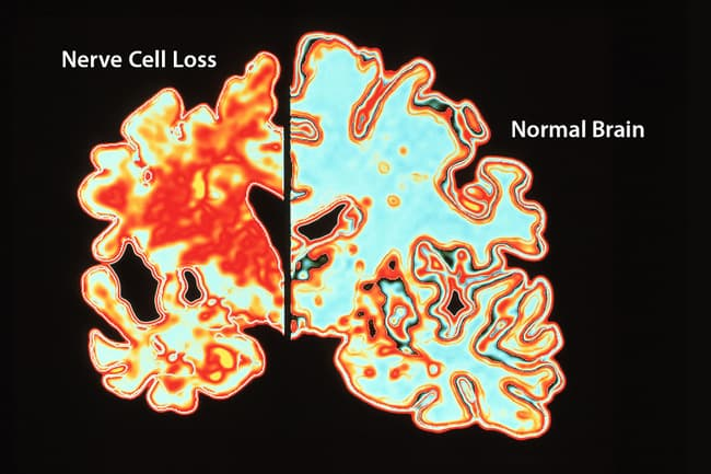 normal vs alzheimers brain scan