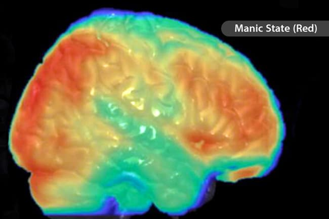 bipolar disorder brain scan