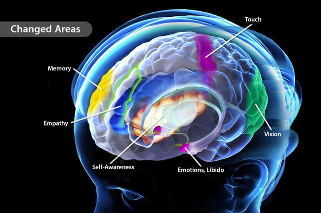 areas of the brain changed by meditation