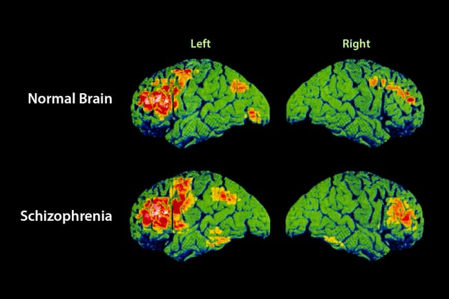 schizophrenia brain scan