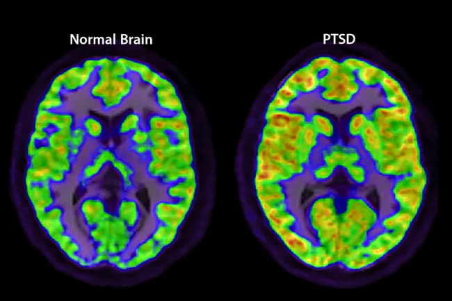 normal vs ptsd brain scans